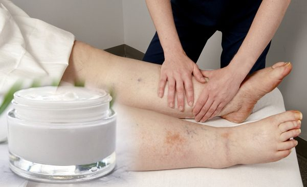 The benefits of CBD cream for lymphedema